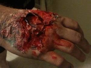 Gruesome hand wound.